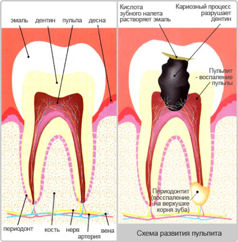 Как снять воспаление корня зуба в домашних условиях